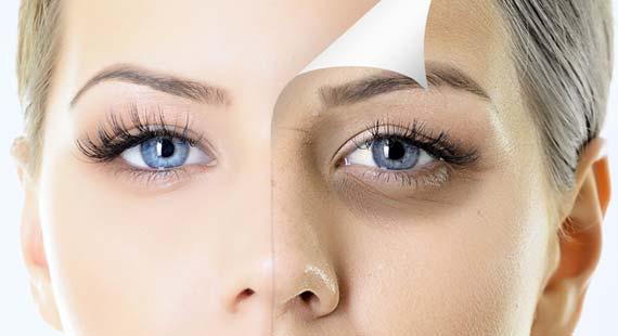 Сравнение лица с мешками под глазами