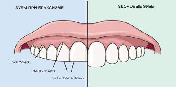 Как выглядят зубы при бруксизме