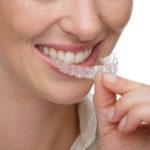 Ночной скрип зубами (бруксизм)