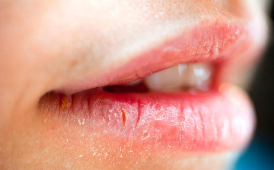 Повреждённые сухие губы