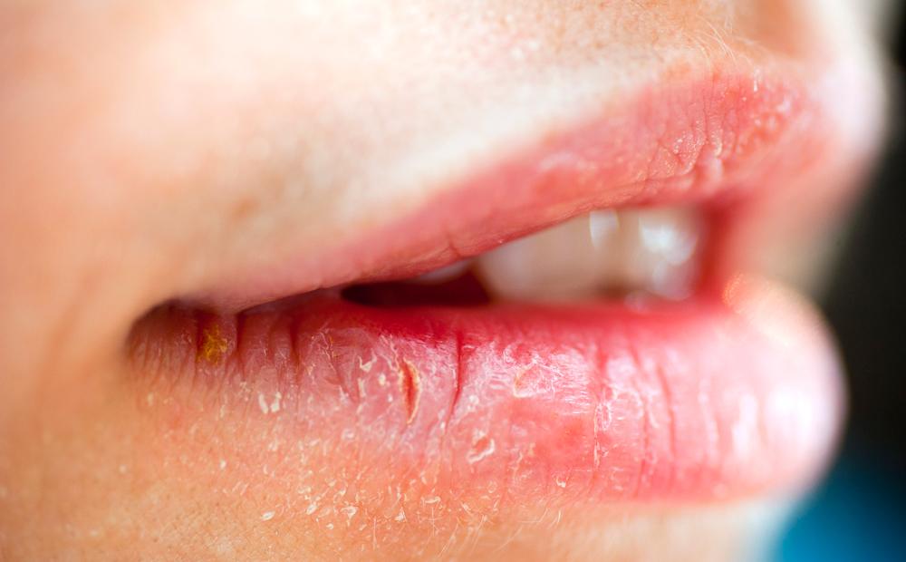 Картинки трещины на губах