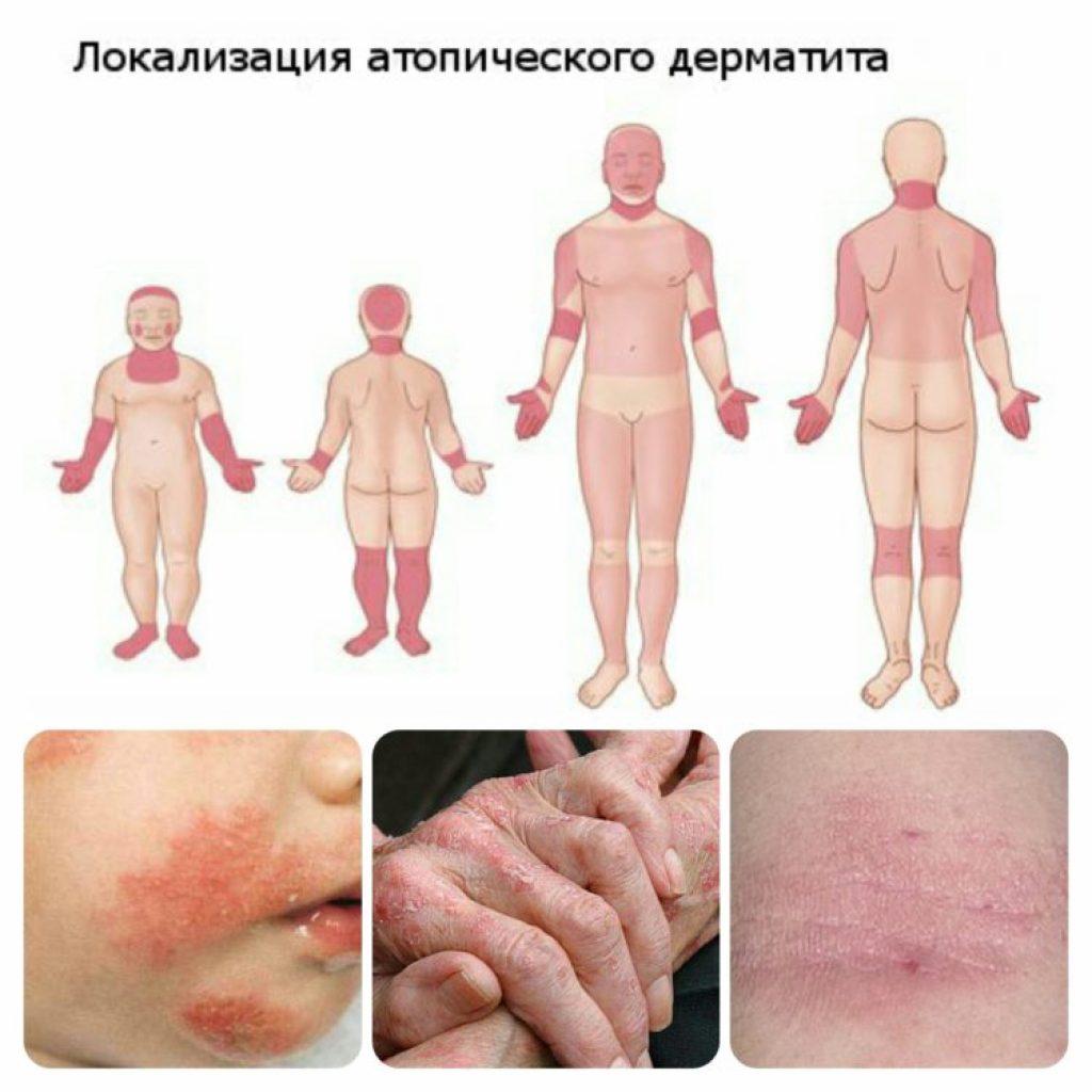 Локализация атопического дерматита
